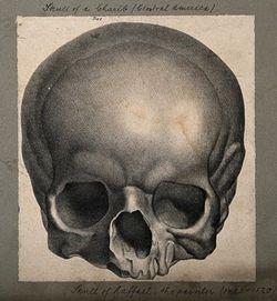 Raphael_Skull