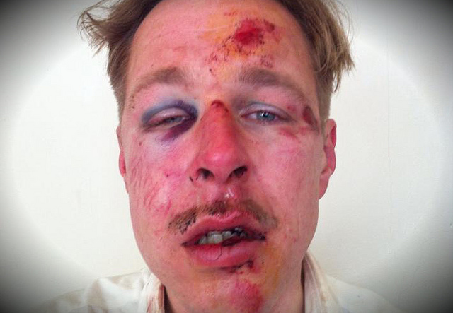 Gay-man-severely-beaten-by-Muslims-in-Paris