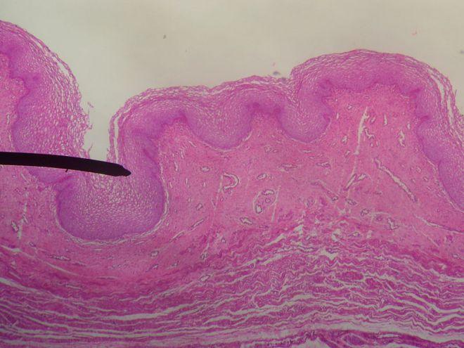Vagina_(mucosa)