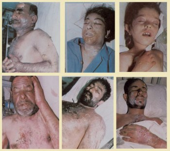 Chemical Weapons Iraq-Iran War