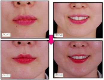 Smile Plastic Surgery