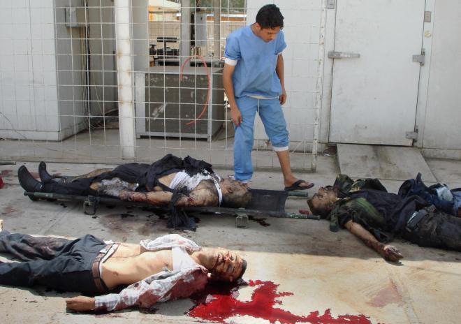 An Iraqi hospital worker inspects burned