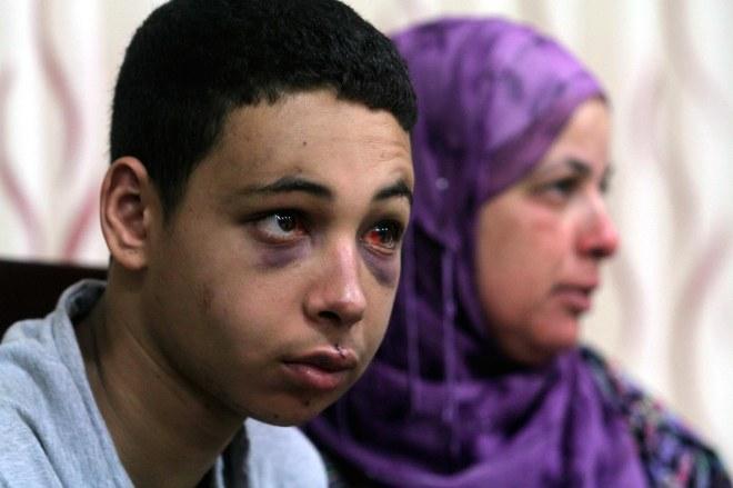 Mahmoud Abbas receives Mohammed Abu Khdeir's family