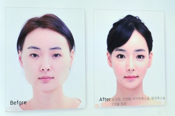 SKOREA-HEALTH-SURGERY-ADVERTISEMENT-LIFESTYLE