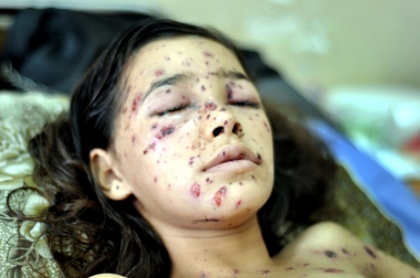 Palestinian Dina in difficulty opening her eyes